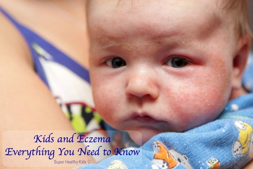 Kids and Eczema: Everything You Need to Know. This is eczema on face of newborn. https://www.superhealthykids.com/kids-and-eczema-everything-you-need-to-know/